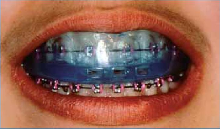 4 - آنچه لازم است راجع به محافظ دندان بدانید