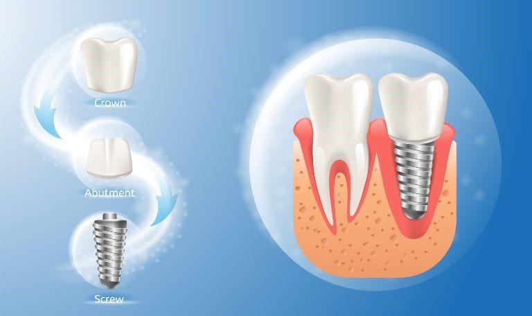 2 1 - ایمپلنت های دندانی و فرایند کاشت آنها