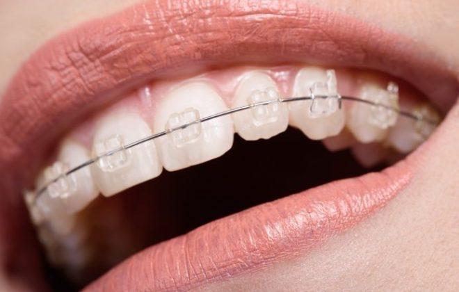 29 660x420 - چگونه می توان در طول درمان با بریس ها دندان ها را سفید حفظ کرد؟