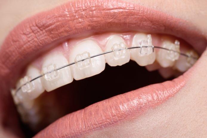 29 - چگونه می توان در طول درمان با بریس ها دندان ها را سفید حفظ کرد؟