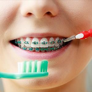 30 - چگونه می توان در طول درمان با بریس ها دندان ها را سفید حفظ کرد؟