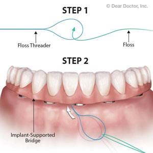 2 2 - مشکلات شایع ایمپلنت های دندانی
