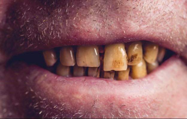 2 - سیگار کشیدن چه تأثیرات منفی روی دهان و دندان ها دارد؟