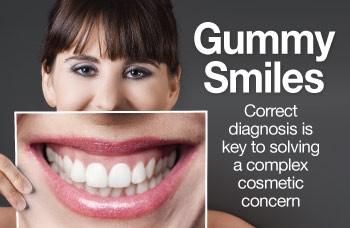 5 - اصلاح لبخند لثه ای یا افزایش طول تاج دندان