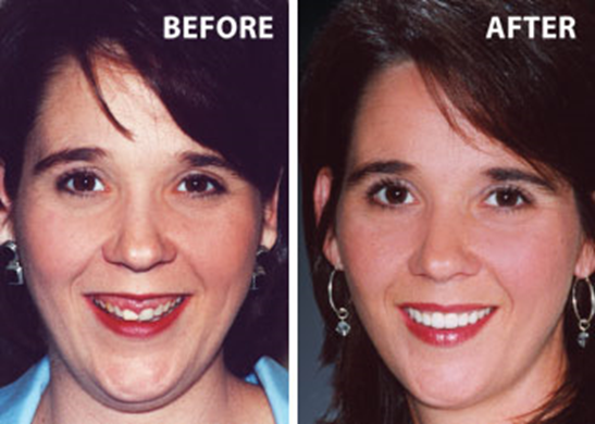 7 - اصلاح لبخند لثه ای یا افزایش طول تاج دندان
