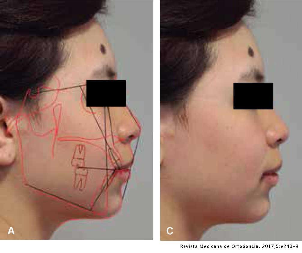 7 1 - رتروگناتیزم یا عقب رفتگی فک