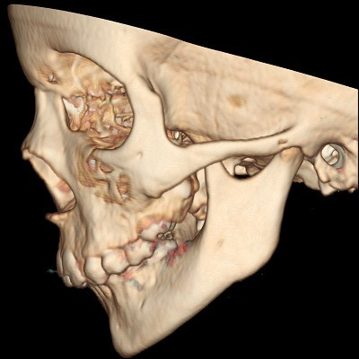 7 - رتروگناتیزم یا عقب رفتگی فک