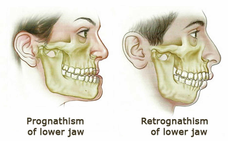 8 - رتروگناتیزم یا عقب رفتگی فک